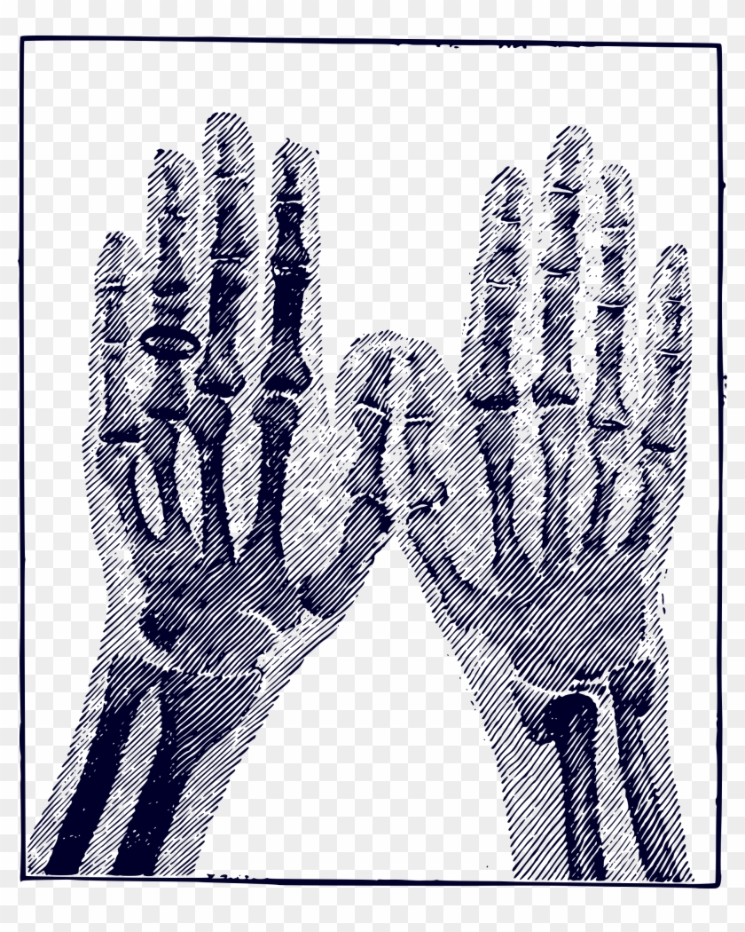 This Free Icons Png Design Of X Ray Image X Ray Hand Png Vector Free Illustrator Clipart 2864896 Pikpng Hand x ray free icon. x ray hand png vector free illustrator